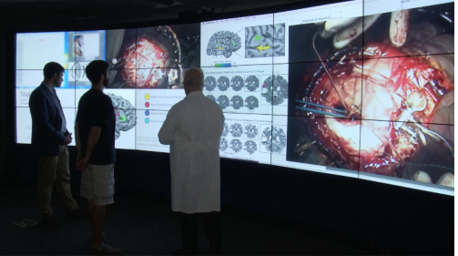 Brain mapping image